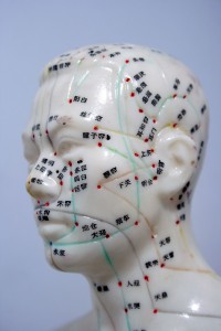 can acupuncture help with tinnitus